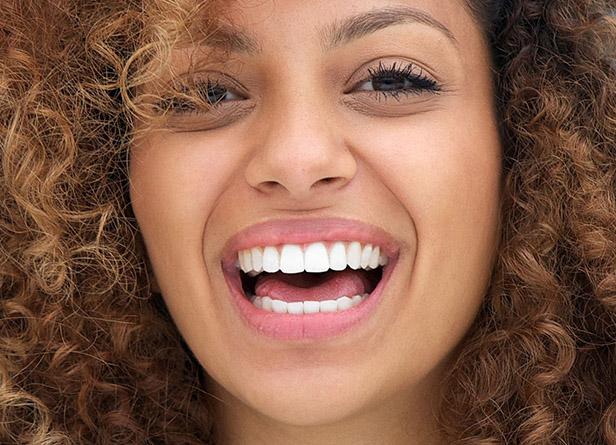 Clareamento Dental em Pelotas