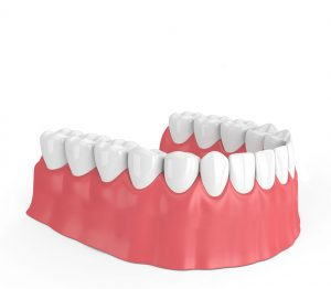 4 - Dentes em posição