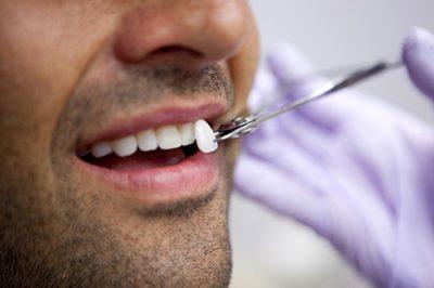 Lente dental em Pelotas